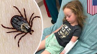 Gadis lumpuh karena gigitan kutu! - TomoNews