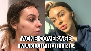 Full Acne Coverage Foundation Routine + Natural Makeup ♡