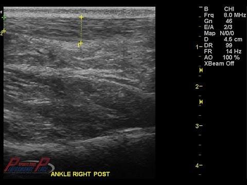MSK Ultrasound of Plantar Fasciitis