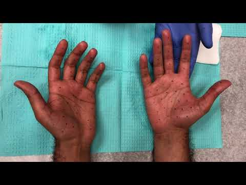 Botox Palm Injections For Hand Sweating (hyperhidrosis)