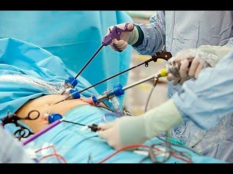 Лапароскопическая резекция синусных кист почек