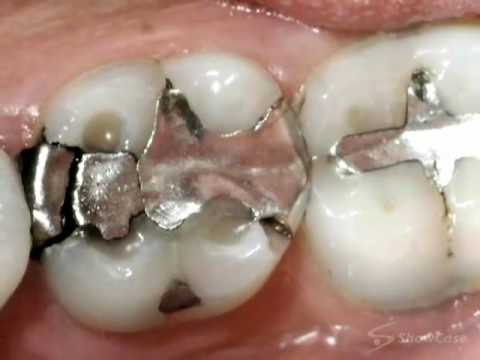 the case against mercury amalgam A 2005 review of the scientific evidence demonstrating significant exposure to mercury and resulting physiological harm from dental amalgam view article: the scientific case against mercury.