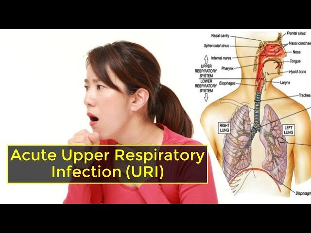 Acute Upper Respiratory Infection(URI): Symptoms, causes, and treatment