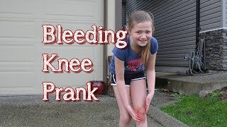 Bleeding Knee Prank | Bethany G Pranks Her Neighbour | TruthPlusDare