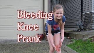 Bleeding Knee Prank   Bethany G Pranks Her Neighbour   TruthPlusDare
