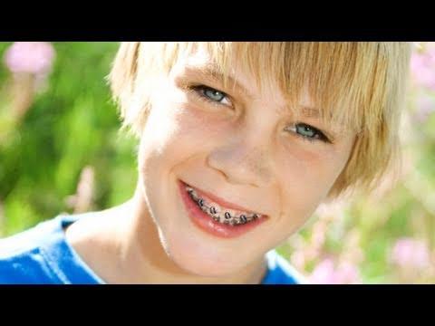 Tipos de aparatos de ortodoncia para los ni os youtube for Colores de marmol para mesadas