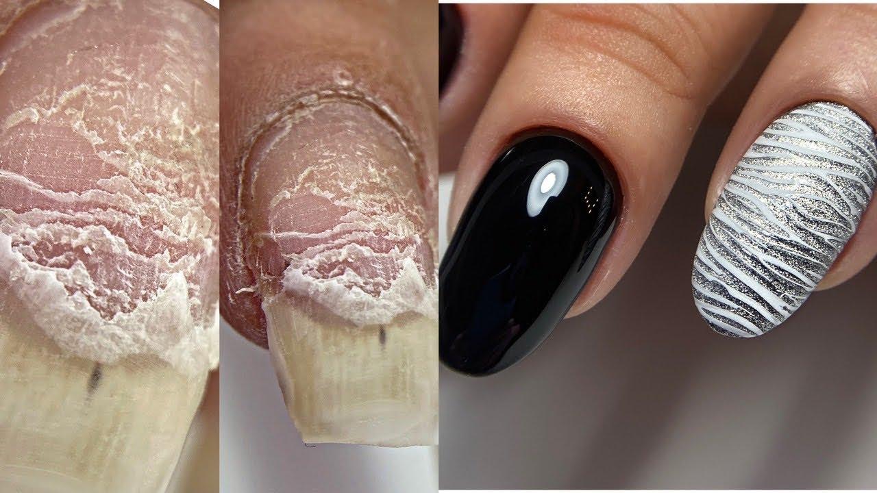 ПРОШИЛА ноготь на швейной машинке😱Деформация ногтя😱 Расслоение ногтя как исправим? Маникюр