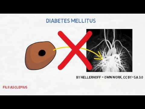 diabetes tipo 1 inducida