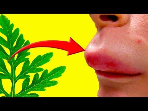 ПРИРОДНЫЕ АНТИГИСТАМИНЫ! Народные средства от аллергии!