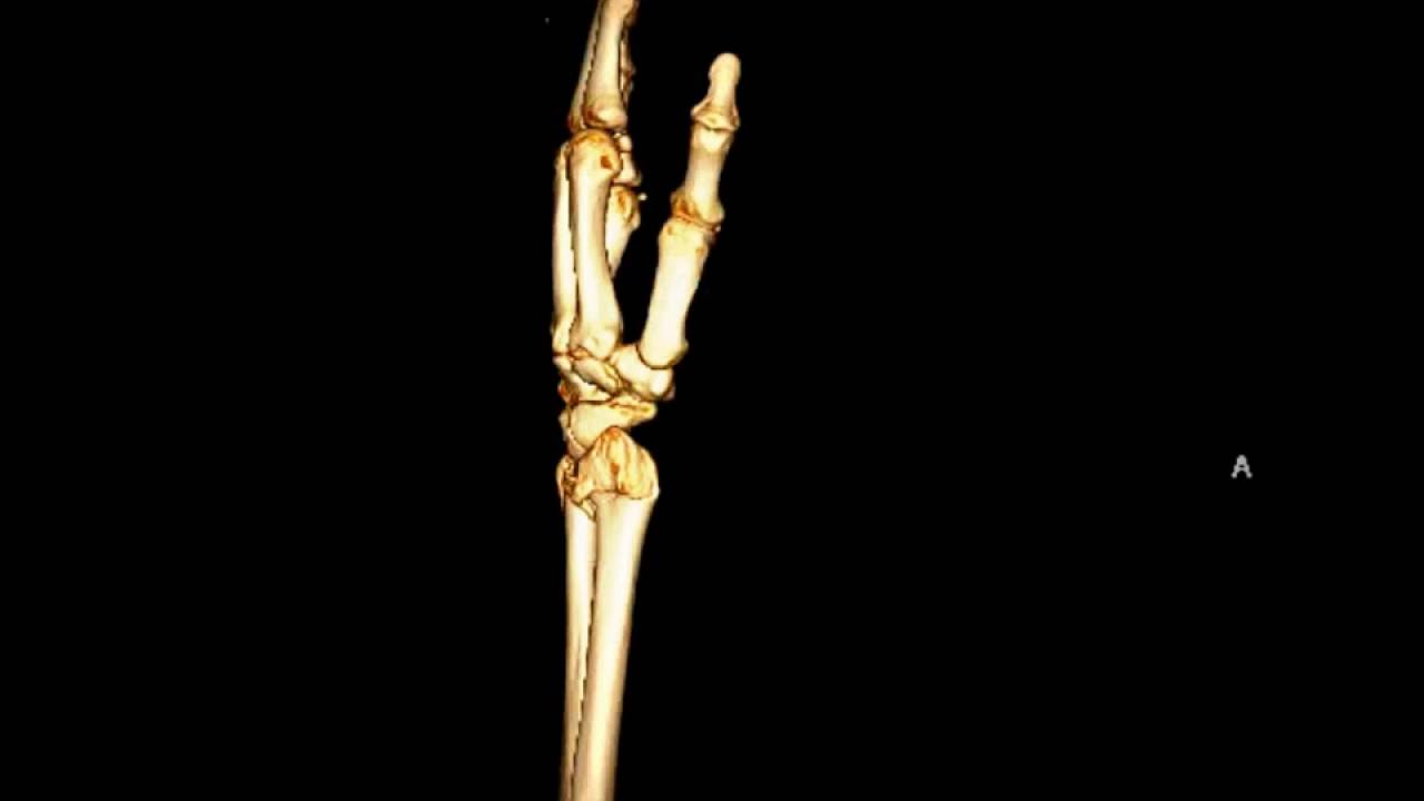 Distal Radius And Ulnar Styloid Process Fracture Youtube