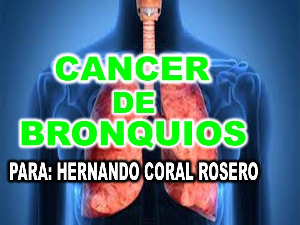 CANCER DE BRONQUIOS - YouTube