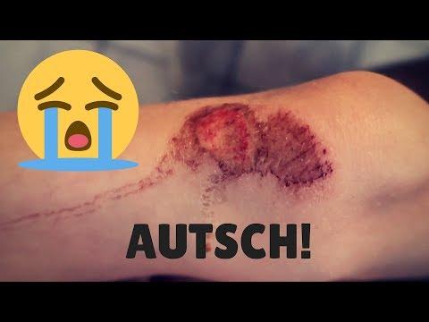AUTSCH, DAS TUT WEH! - UND WIR GEHEN ZU DANAS FUSSBALLSPIEL! - VLOG 19.05.2018