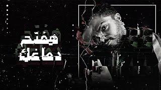 Doudou - haft7 damaghk (Official Music Video) | دودو - هفتح دماغك