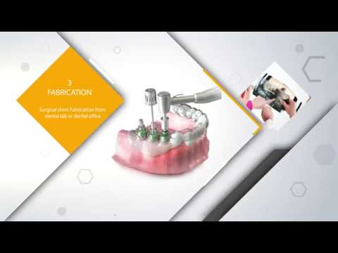 Implant Las Vegas Hue Dental