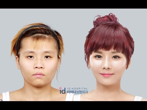 [ID Hospital Review] Korea plastic surgery before and after, Let me in  Season 4 Eng Sub