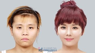Eng Sub, Korea plastic surgery before and after,  Let me in Season 4