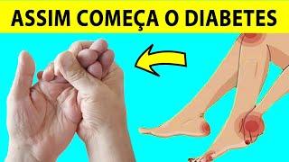 Sinais De Diabete Que Você Não Deve Ignorar