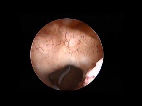Гистероскопия при несостоятельном рубце на матке после КС, эндометриоз рубца
