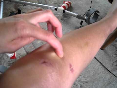 Broken Tibia & Fibula - no cast - Day 18 - YouTube