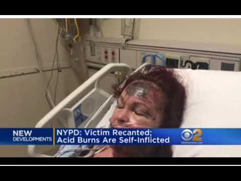 NYPD: VICTIM RECANTED; ACID BURNS ARE SELF-INFLICTED