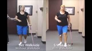 Chůze_pacientky_po_CMP_s_neurostimulatorem_WalkAide_-_cz_titulky