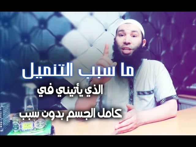 ﻣﺎ ﺳﺒﺐ ﺍﻟﺘﻨﻤﻴﻞ ﺍﻟﺬﻱ ﻳﺄﺗﻴﻨﻲ ﻓﻲ ﻛﺎﻣﻞ ﺍﻟﺠﺴﻢ ﺑﺪﻭﻥ ﺳﺒﺐ مع الراقي عثمان أبو آدم Youtube