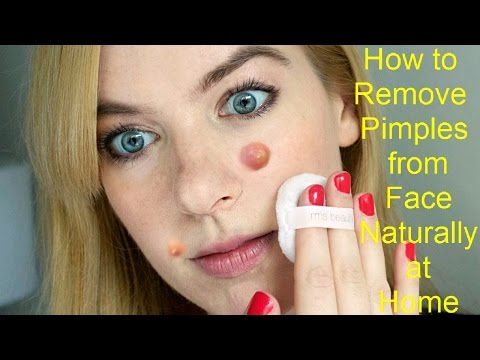 How to Remove Pimples from Face Naturally at Home | Best Acne Treatment