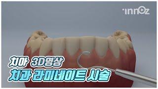 [이노즈] 3D영상제작 / 치과 라미네이트