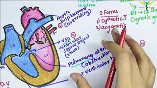 This video presents an approach to Tetralogy of Fallot, a cyanotic congenital heart defect. Listener.