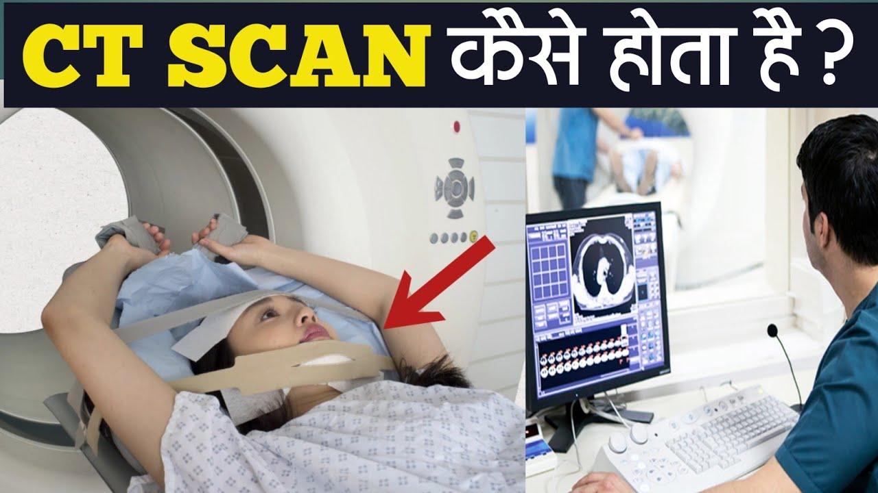 सीटी स्कैन क्या है ये कैसे होता है?   CT Scan Kaise Hota Hai