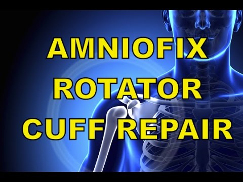 AmnioFix Injectable using Dehydrated Amniotic Membrane: Rotator Cuff Tears, used w/ PRP