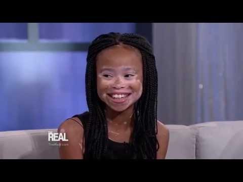 Winnie Harlow Surprises 10-Year-Old Aspiring Model!
