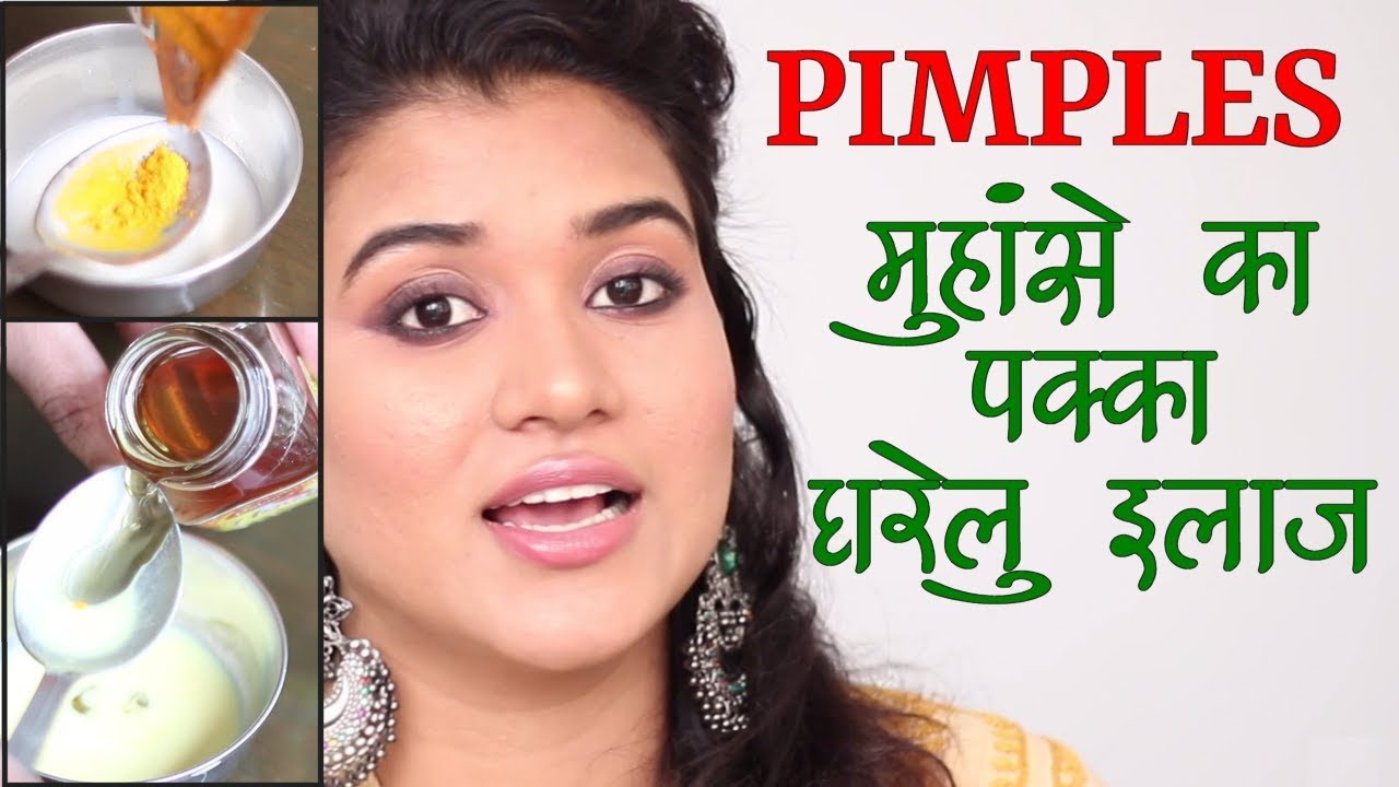 Home Remedies For Pimples Acne Hindi Youtube