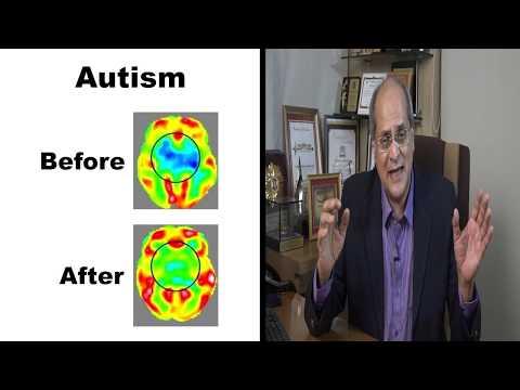 Consultation on Autism with Dr Alok Sharma - Neurosurgeon