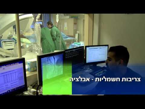 Лечение мерцательной аритмии предсердий в Израиле