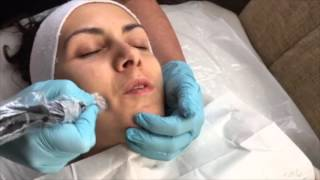Collagen PIN Microneedling Skin Treatment by Qutis Witney