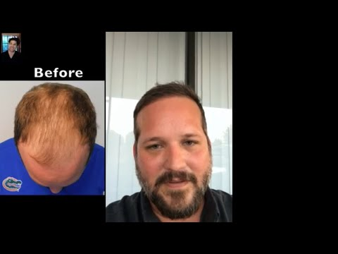 Hair Transplant Reviews | Hair Transplant Surgery Results After 9 Months