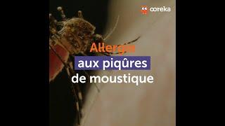 Allergie aux piqûres de moustique : comment se soigner ?