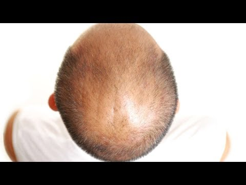 The Hair Loss DHT Myth: Baldness Cure Debunked
