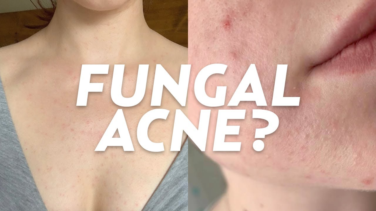 What Is Fungal Acne We Discuss Treatments Causes More Youtube