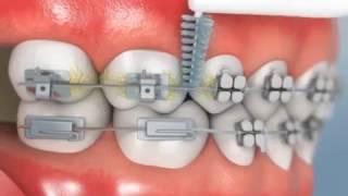 طريقة تنظيف الاسنان مع التقويم Youtube