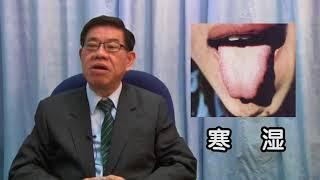 从舌苔观察五脏之健康状况 - 黄来兴中医师