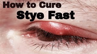 How to Soothe a stye fast : How to Get Rid Of Stye - VitaLife Show Episode 118