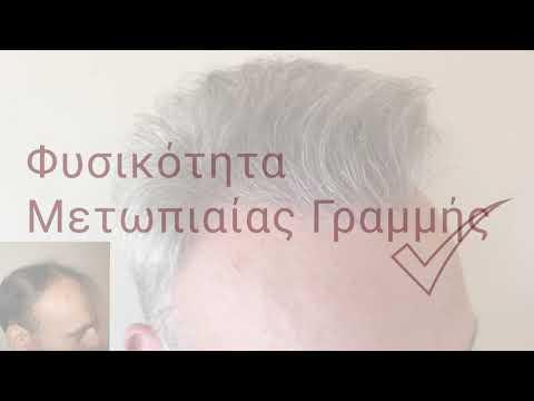 Μεταμόσχευση Μαλλιών με την υπογραφή Bergmann Kord