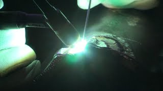 Tech Tips: Welding Magnesium