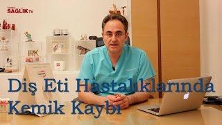 Diş Eti Hastalıklarında Kemik Kaybı - Prof Dr Bülent Kurtiş