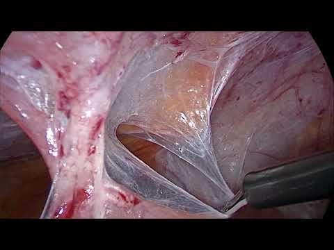 Тяжелый спаечный процесс в брюшной полости.