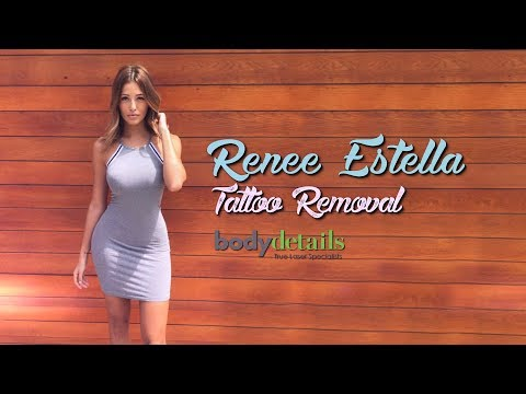 My 2nd Tattoo Removal Treatment | Renee Estella | Body Details