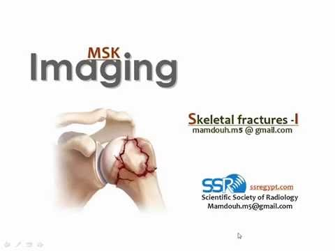 Upper limb fractures