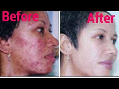 How To Treat Acne Naturally In 30 days At Home | acne treatment | Acne no more